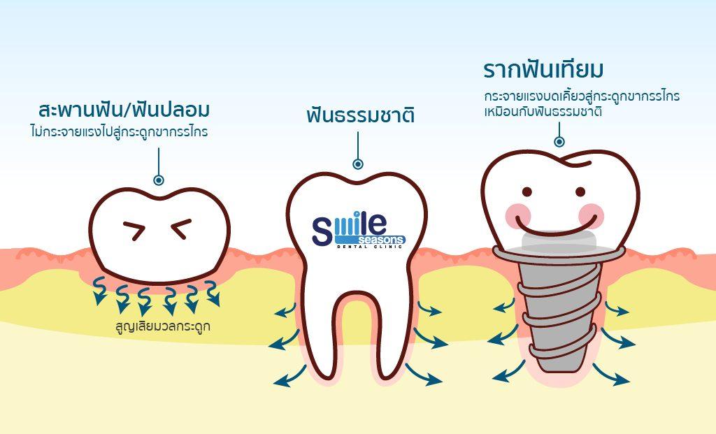 ข้อดีของรากฟันเทียม ลดการสูญเสียมวลกระดูก