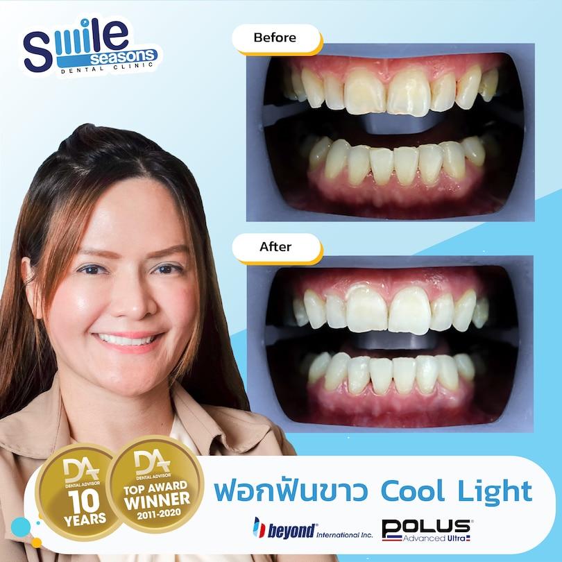 coollight ฟอกฟันขาว ตัวอย่าง รีวิว
