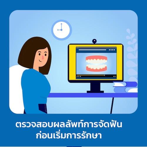 ตรวจสอบผลลัพท์การจัดฟันใส ดี-aligner
